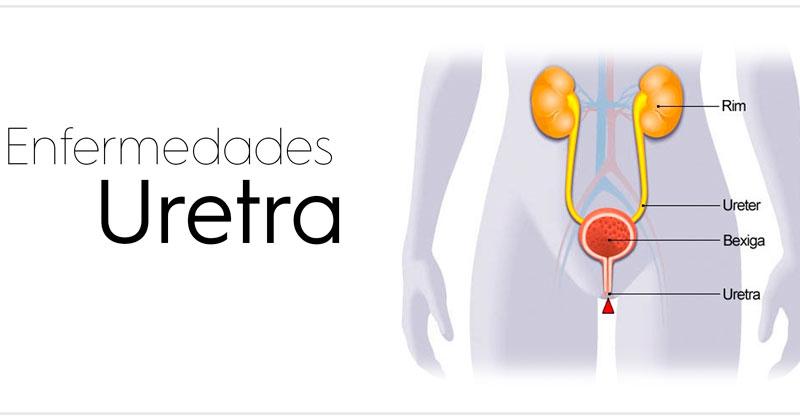 representacion grafica de las enfermedades de la uretra